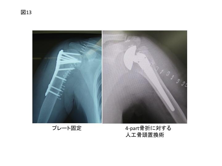 【機能解剖学】肩関節を構成する5つの骨と ...